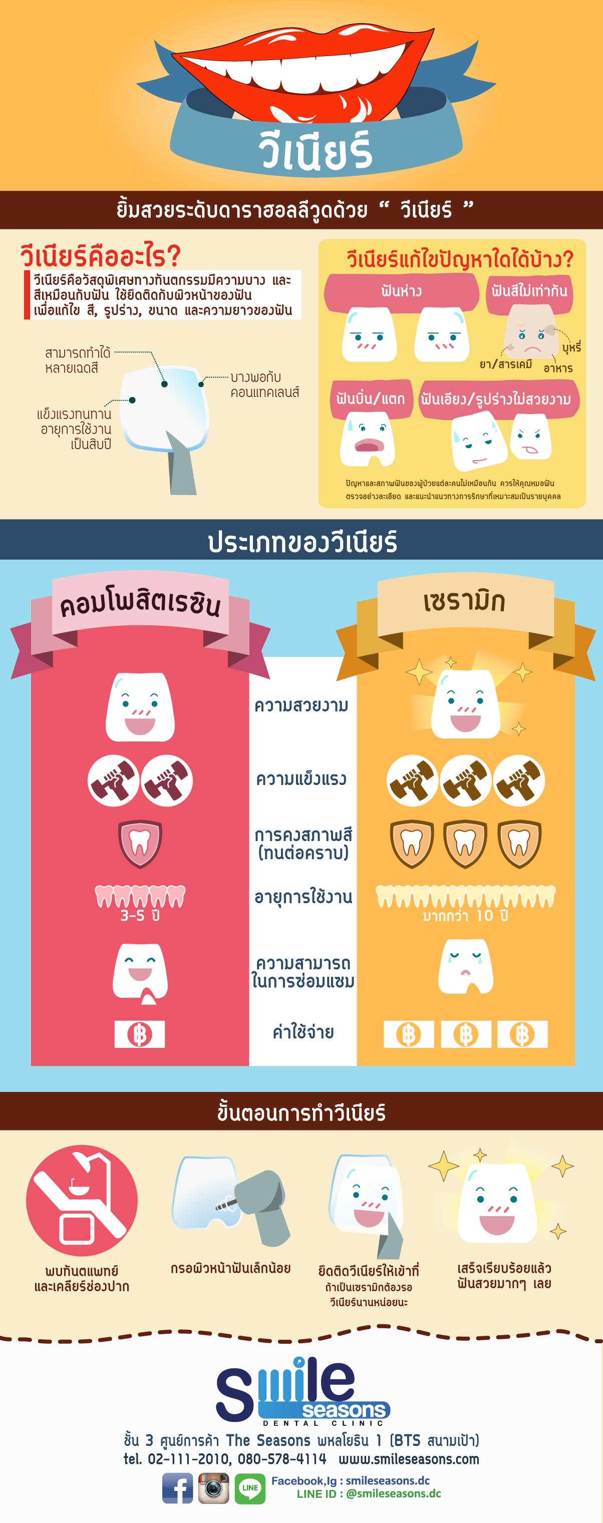 dental_veneer